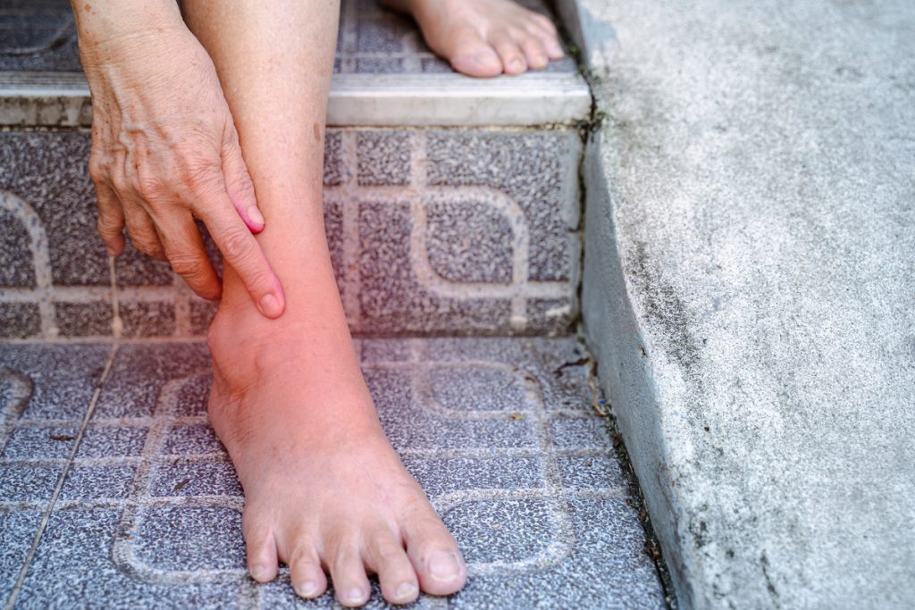 Common Causes of Drop Foot